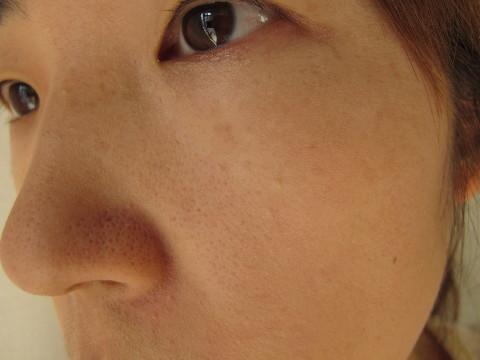 タンミラクを顔に塗ったところ