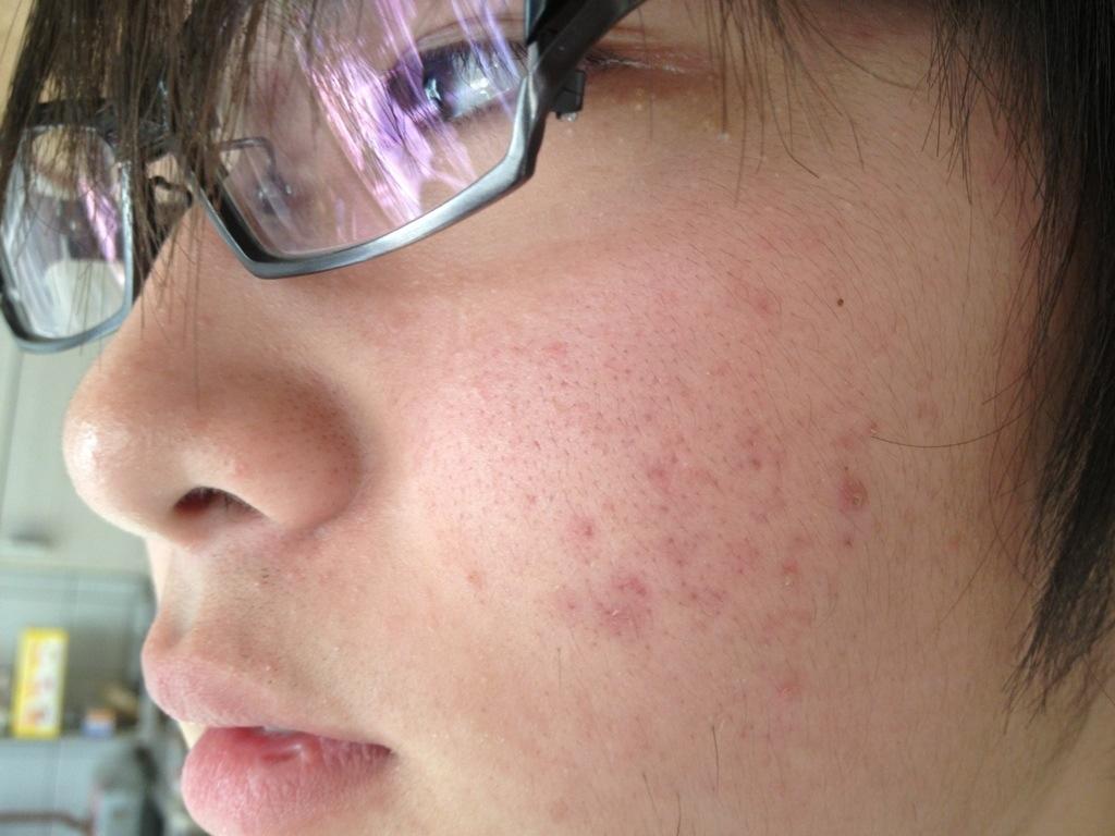 トリア・スキンパーフェクティングブルーライトを使って3ヶ月後の高校生男子の顔肌