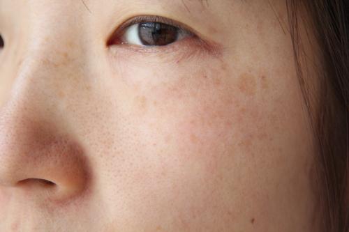 トリア・スキン エイジングケアレーザーを使う前の顔そばかす