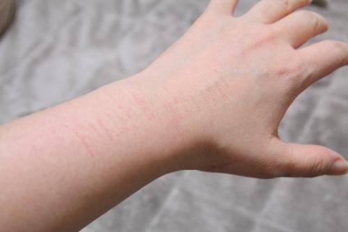 トリア・スキン エイジングケアレーザーをやって、お風呂に入った時の腕、跡が出た