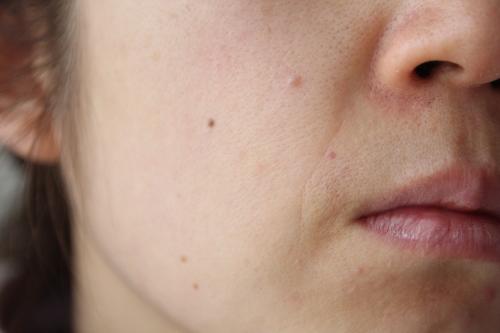 トリア・スキン エイジングケアレーザーを使う前の左頬