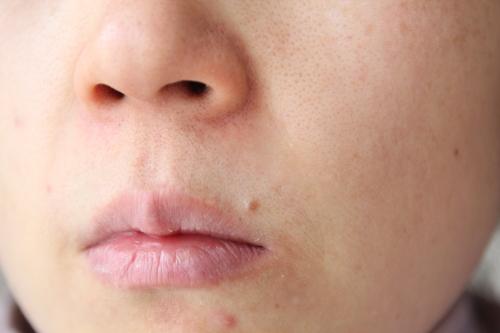 トリア・スキン エイジングケアレーザーを使う前の顔