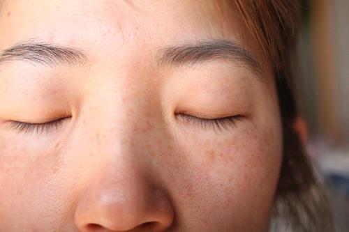トリアフラクショナルレーザーを照射した1ヶ月の顔全体