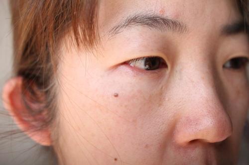 トリアフラクショナルレーザーを照射した1ヶ月の右頬