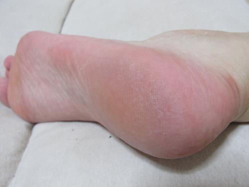 baby_foot10001