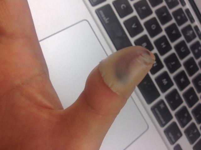 バンドエイド貼って4日後の親指